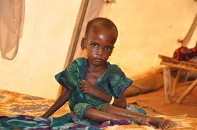 Kano treated 3.6m malnourished children