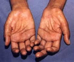 Leprosy: FCTA alerts on early diagnosis