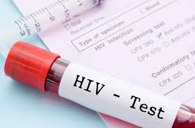 Katsina Agency advises youths to undergo HIV, Genotype tests