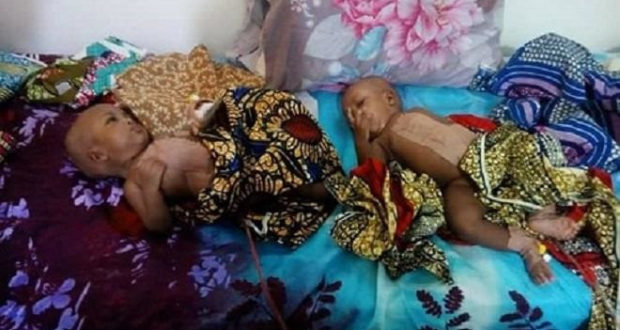 Doctors separate 4 months conjoined twins at FMC Yola